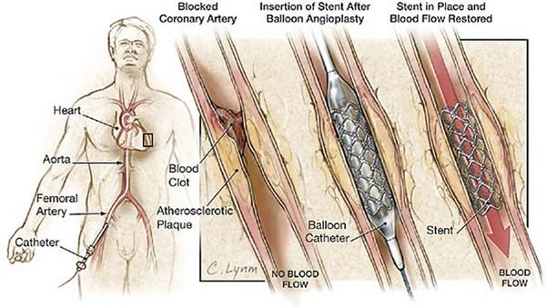 heart-stent-surgery.jpg